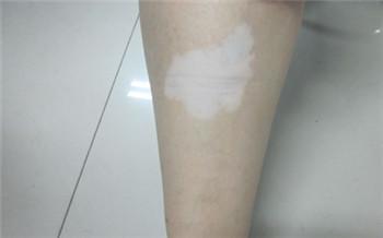 女儿今年10岁白斑长在腿上是白癜风吗