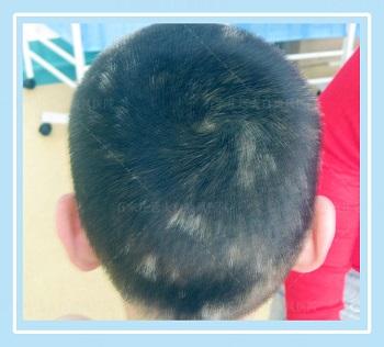 男性头顶头皮大面积发白是什么原因