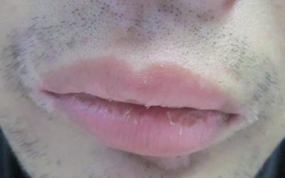 嘴唇上方下方圈发白是怎么了