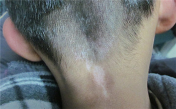 小孩脖子上有块皮肤发白是白癜风吗