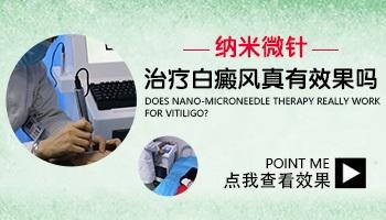白癜风用纳米微针渗透疗法有用吗