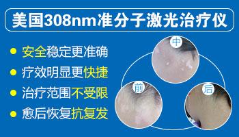 白癜风照308光疗一个疗程需要做几次