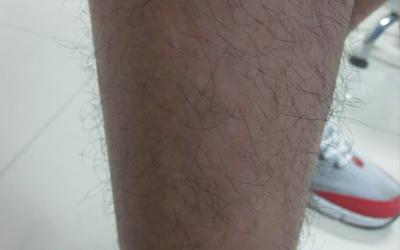 男人大腿根内侧有点像白癜风