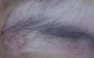 白癜风眉毛发白的图片