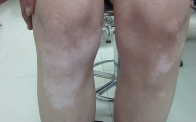 白癜风都长在左腿上是哪个类型