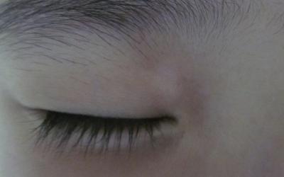 早期白癜风的症状图片