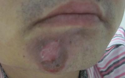 下巴长了一点白斑不明显一月了怎么治
