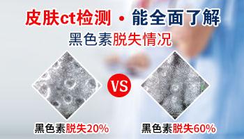 皮肤ct能检查出白斑还有多久能治好吗