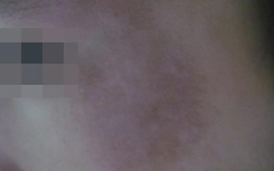 为什么脸上会有一块白 白斑像是白癜风