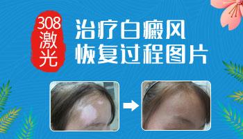 白斑光疗的恢复过程