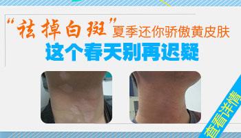 脖子白癜风初期症状图片