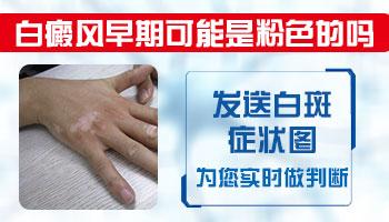 女性手指长白斑是得了白癜风吗