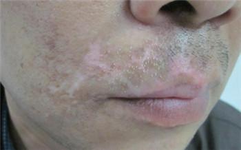 脸上长了一块白斑很多年了 白斑是什么