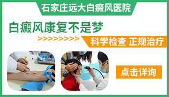 推荐河南安阳治白癜风白斑效果最好的医院