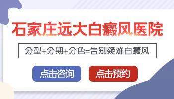 邯郸医院如何有效治疗早期白癜风