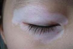 儿童眼部白癜风对眼睛是否有危害