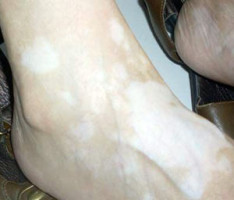 腿部的白癜风症状有哪些
