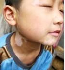 小孩嘴唇出现白点的原因