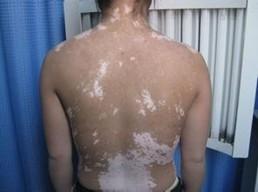 腰部上出现的白斑是白癜风吗