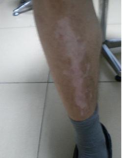 腿部白癜风有哪些症状