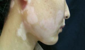 邯郸患者怎么护理脸上的白癜风