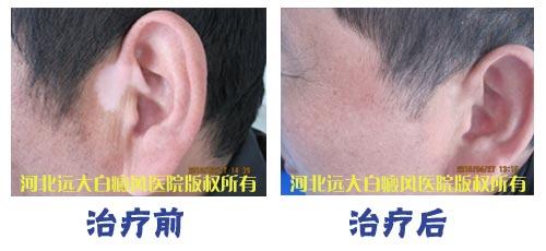 白癜风治疗对比图.jpg
