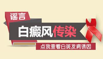 在沧州治疗女性白癜风方法有哪些