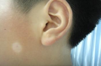 孩子脸上脖子上有白斑是什么