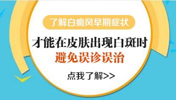 邯郸白癜风医院有没有308激光治疗技术呢