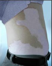 面积较小的白癜风白斑邯郸哪家医院可以治疗