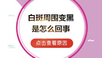 天津儿童白癜风发病原因是什么
