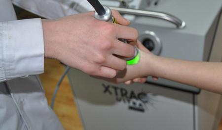 在张家口白癜风医院用308激光治疗几次能好