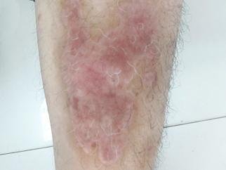 腿部种植后一个半月.jpg