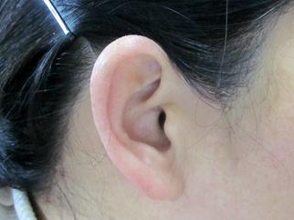 耳部治疗后.jpg