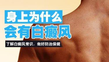 男性白癜风治疗