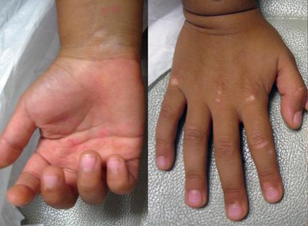 手心有一块白斑是不是白癜风的症状