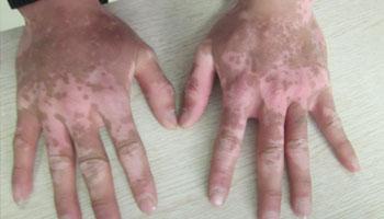 手指上的白癜风用激光治疗效果好吗