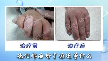 手指关节长白斑好治吗