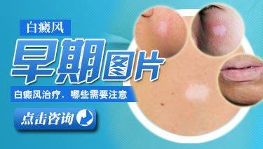 白癜风医院有黑豆泡醋治疗的方法吗