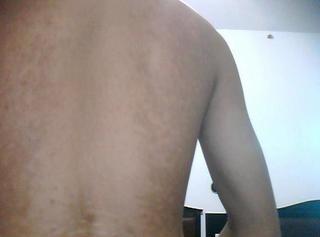 治疗背部白癜风需要注意什么