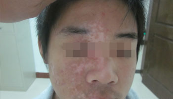 什么方法完整的适合治疗脸部的白癜风