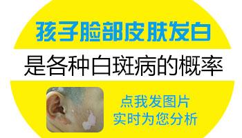白癜风治疗方法大集锦