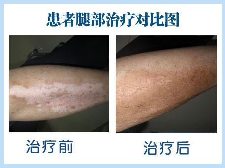 腿部白癜风治疗要注意哪些问题