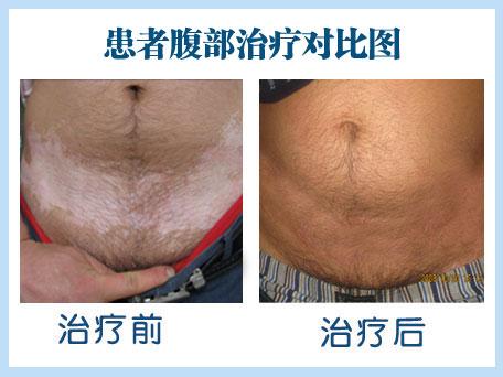腹部白癜风治疗用激光多久可以好