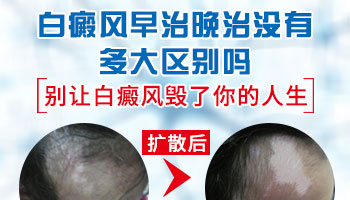 廊坊白癜风医院治疗女性白癜风效果可靠吗