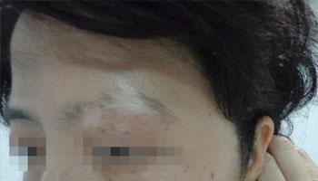 有治疗青年脸上白癜风不留痕迹的方法吗