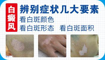 石家庄白癜风医院有特别的治疗方法