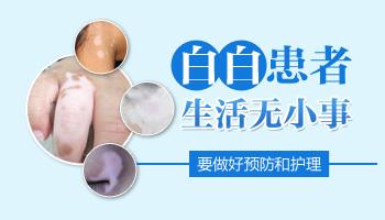 肢端型白癜风早期怎么治疗