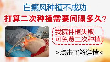 白癜风医院做308激光治疗消费高不高