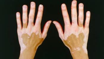 手指关节有白癜风要怎么治疗